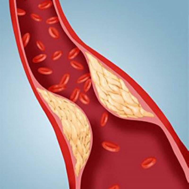 Как очистить сосуды от холестериновых бляшек и тромбов?