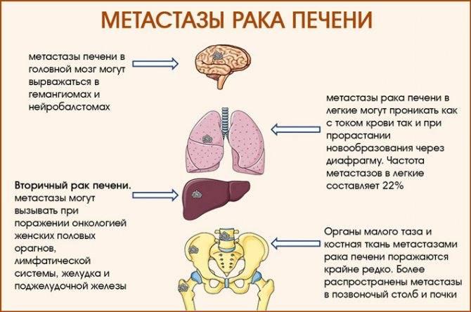 Химия при метастазах в печени
