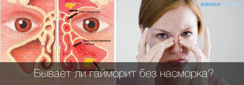 Почему при гайморите болит голова