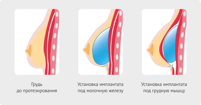 Увеличены молочные железы