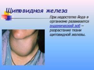 Диффузный токсический зоб (дтз), гипертиреоз. симптомы, диагностика, лечение и профилактика патологии.
