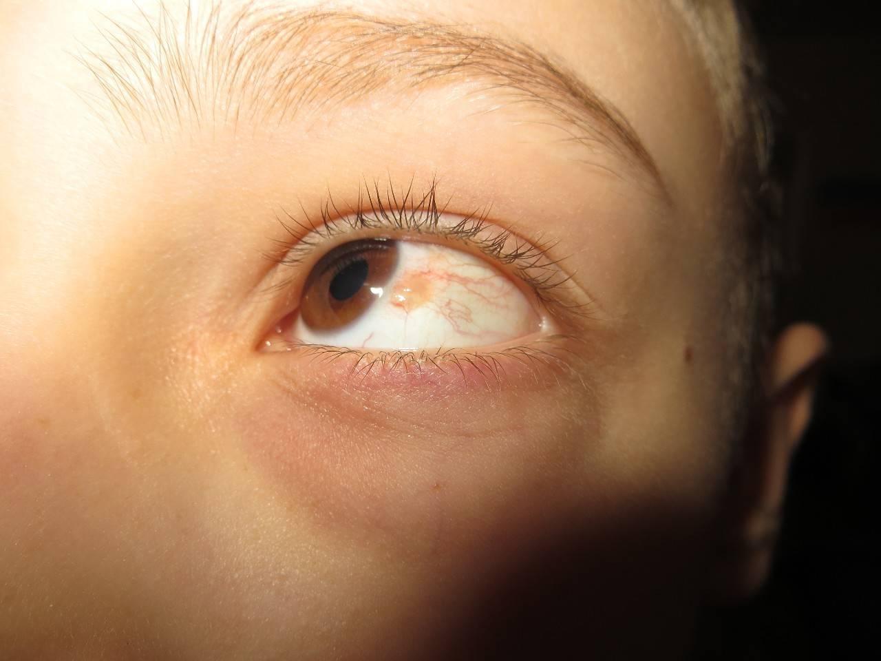 на глазном яблоке прозрачный нарост