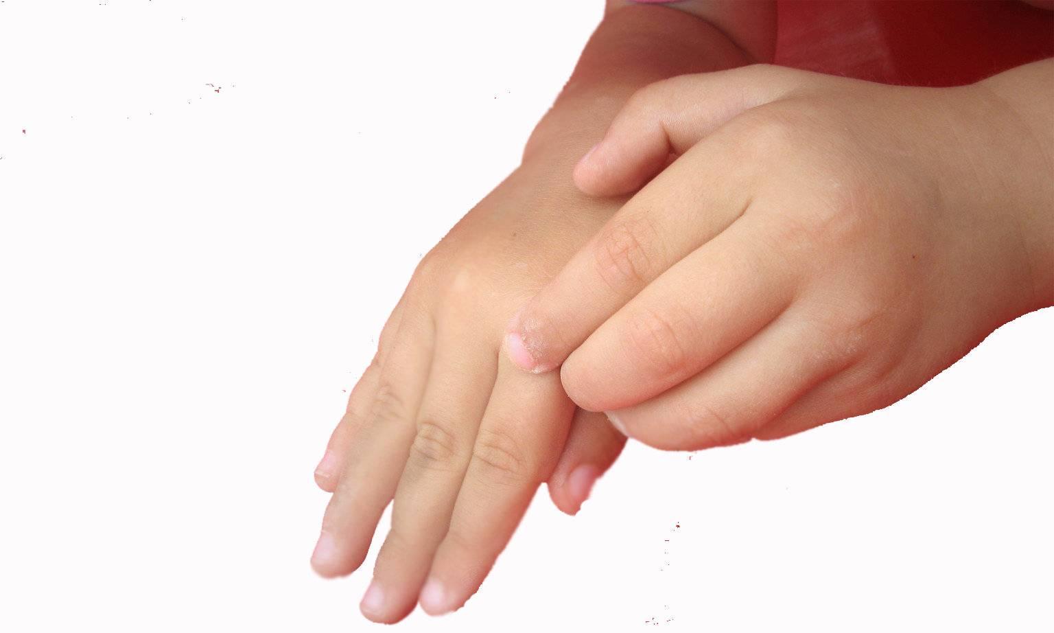 чесотка симптомы у ребенка