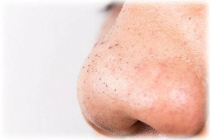 сливка на носу как избавиться