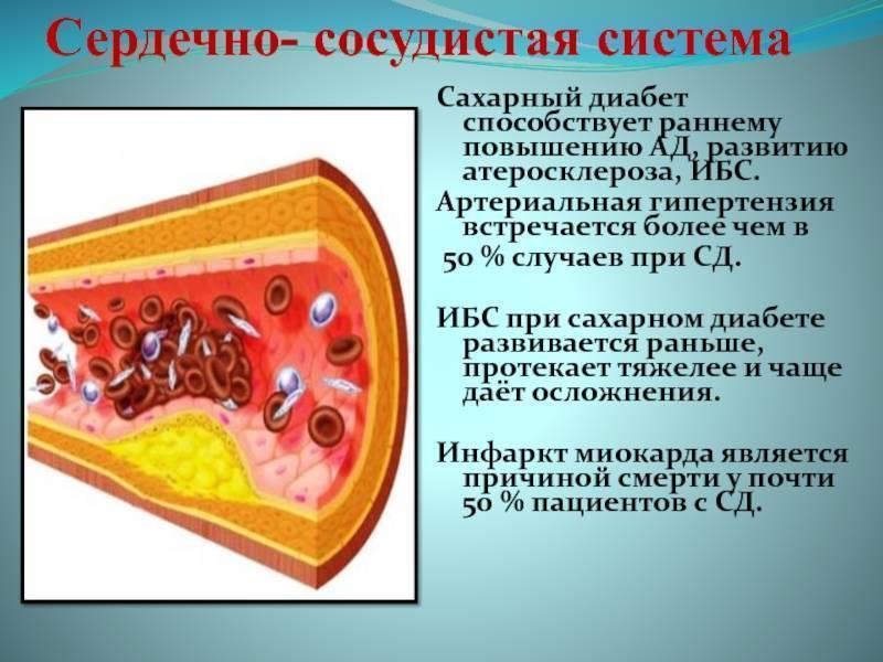 Атеросклероз и сахарный диабет — диабет и всё о нём