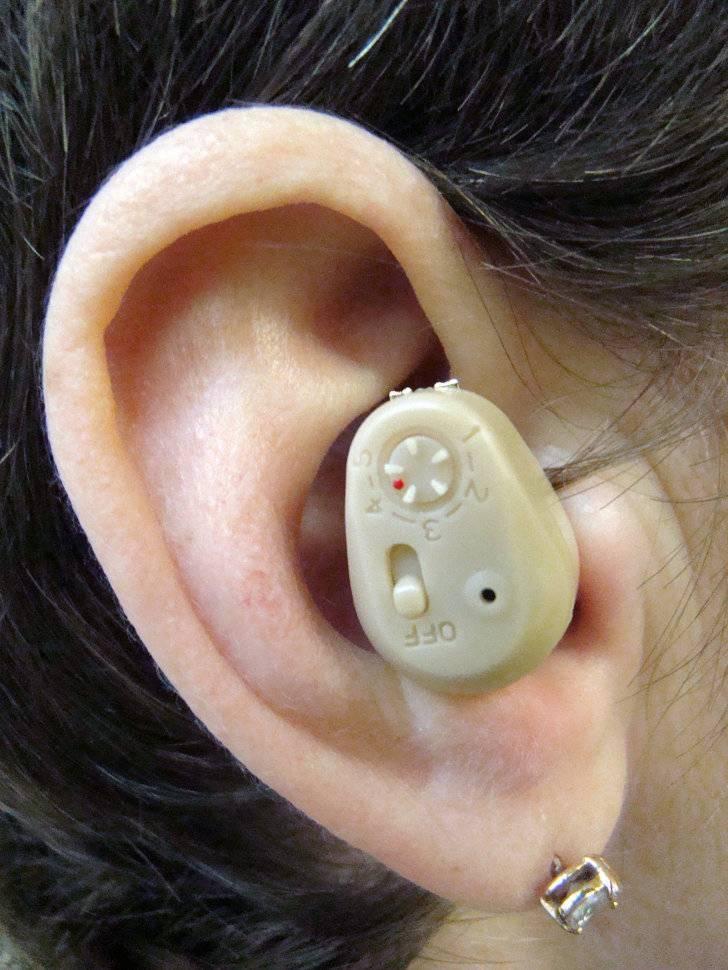Какой слуховой аппарат лучше выбрать и как правильно подобрать модель