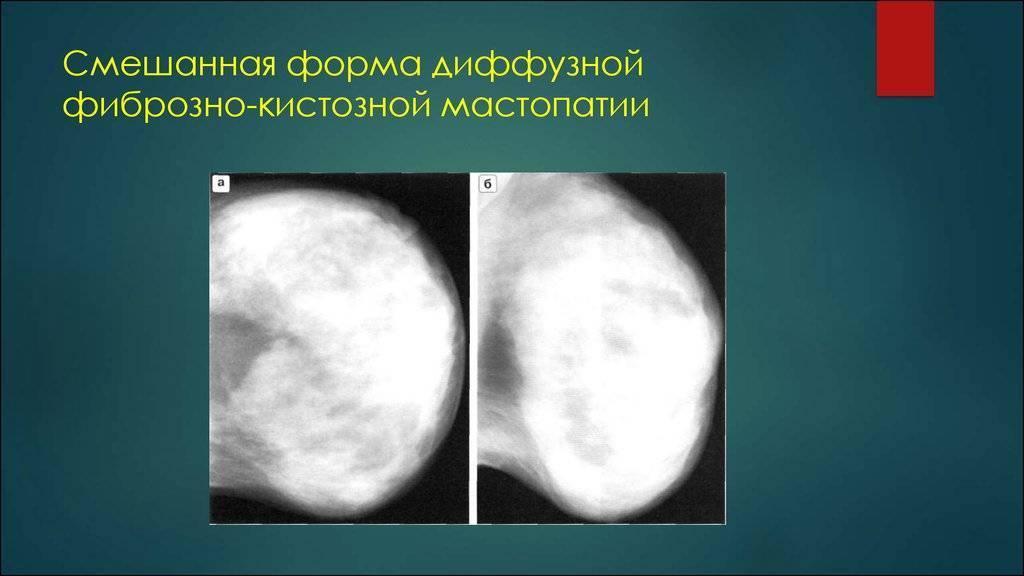 диффузно кистозная мастопатия лечение