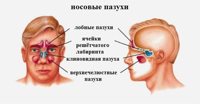 Гайморит лобных пазух лечение