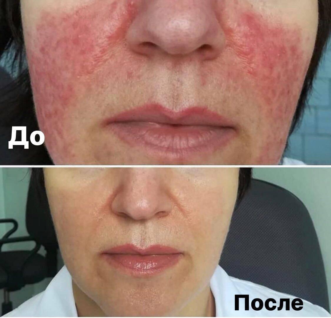 разновидности кожных дерматитов