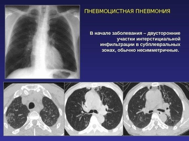пневмоцистная пневмония симптомы у вич инфицированных