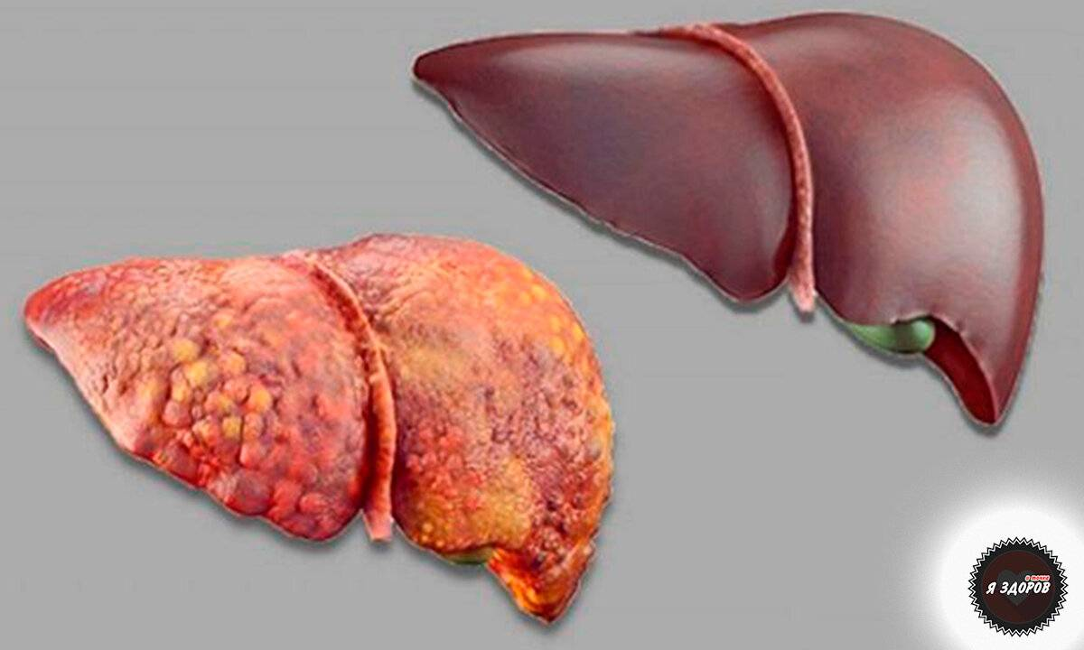 начальная стадия цирроза печени