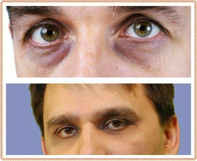 Как быстро убрать синяк под глазом в домашних условиях?