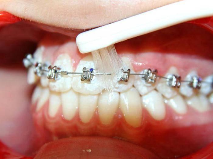 Лучшая зубная паста для брекетов! чем чистить зубы в период лечения?