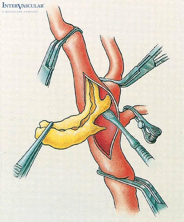 Операция по удалению холестериновых бляшек при атеросклерозе (эндартерэктомия)
