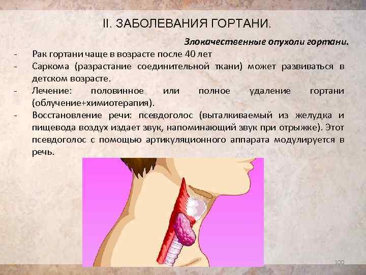 травмы гортани