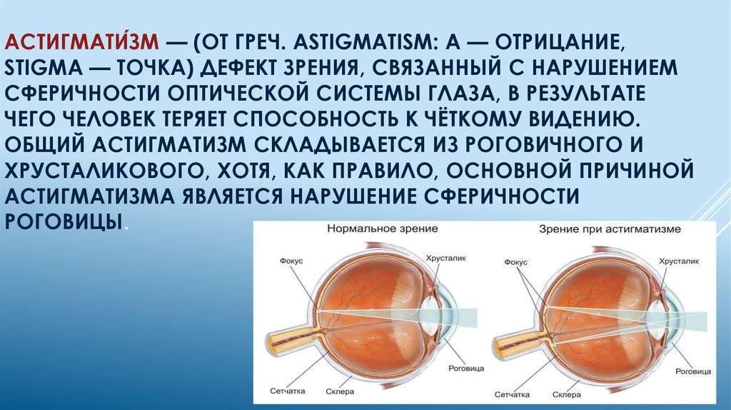Как проверить свое зрение на астигматизм в домашних условиях при помощи онлайн-тестов?