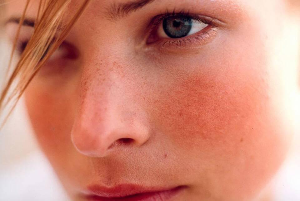 почему нос красный постоянно