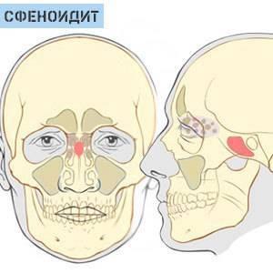 болит голова и заложен нос что делать