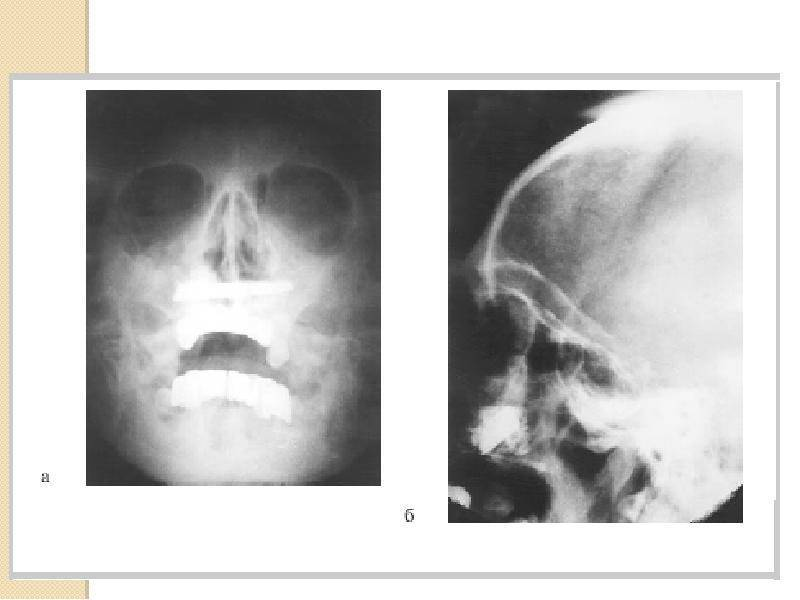 Инородное тело в носу у ребенка:  частые вопросы про беременность и ответы на них