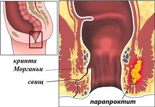 Геморрой + свищ:  вопросы проктологии и советы по лечению