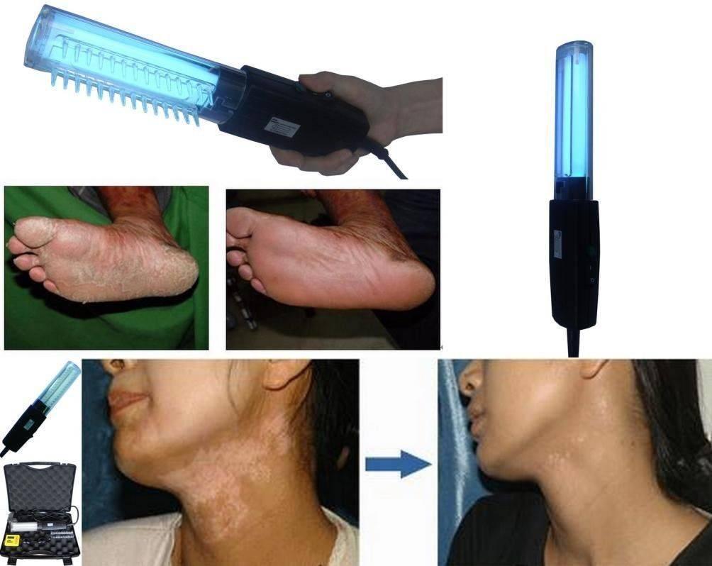 Немедикаментозная терапия псориаза « псориаз? давайте лечиться вместе.