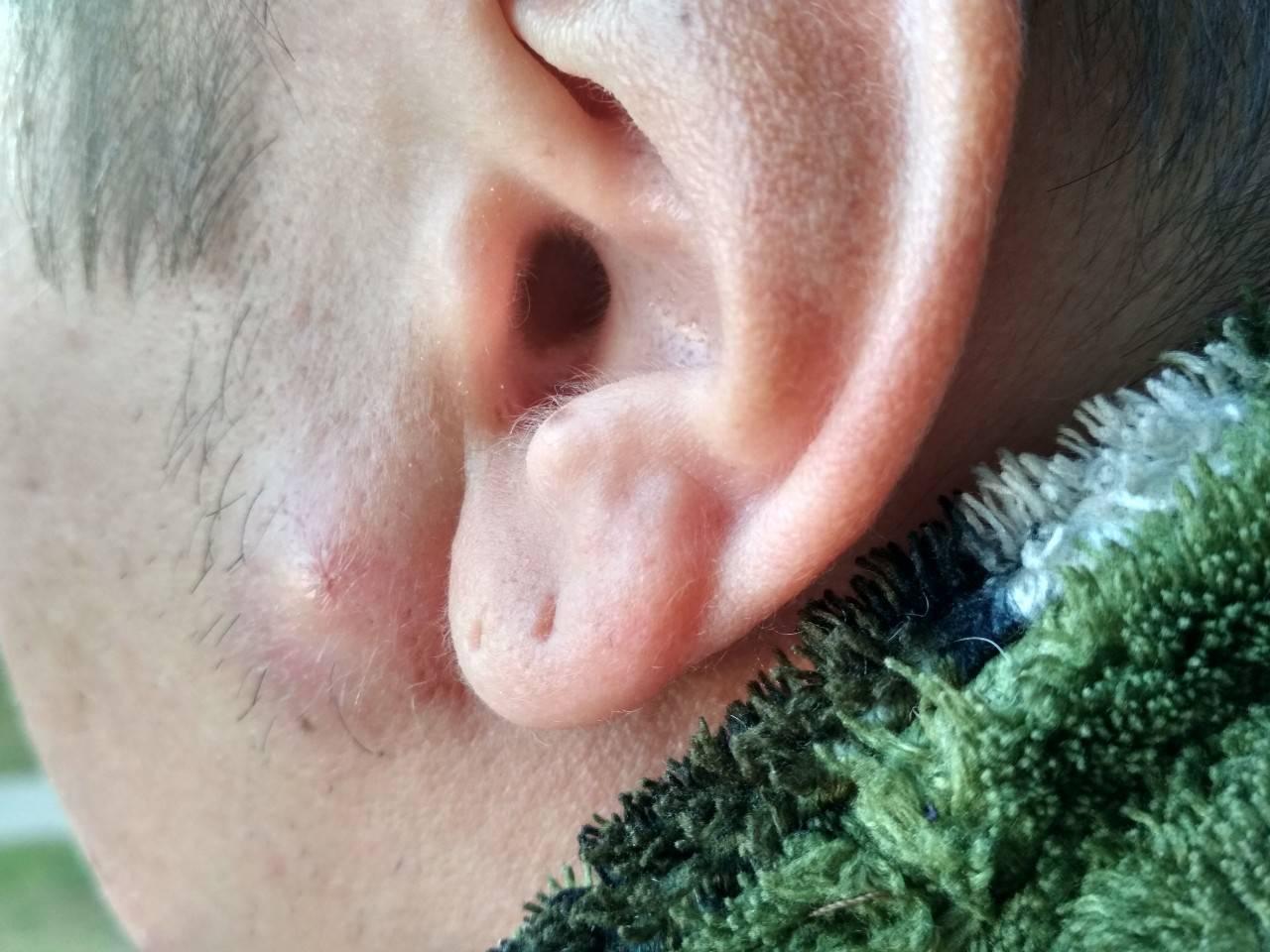 болит около уха при надавливании