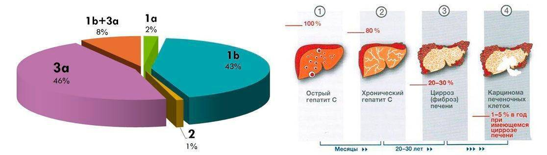 как определить генотип гепатита с