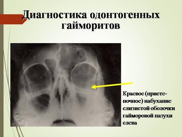 Причины и лечение грибкового гайморита