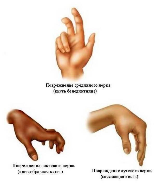 Поражение лучевого нерва: симптомы, признаки, лечение — онлайн-диагностика