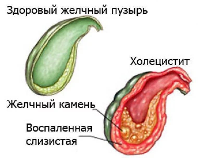 Особенности холецистита у детей