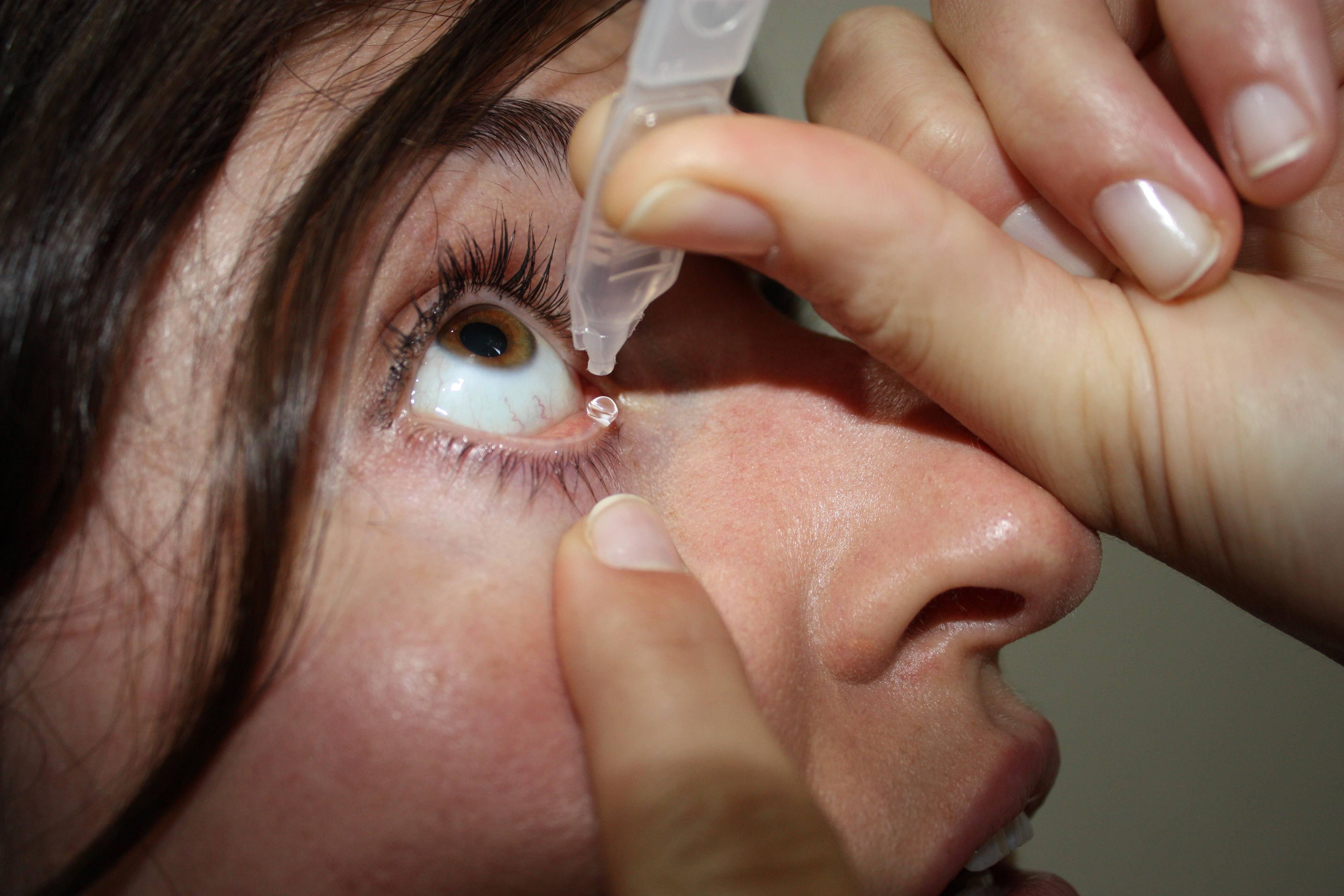 чиряк на глазу как лечить