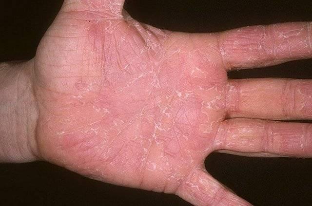 дерматитом можно заразиться