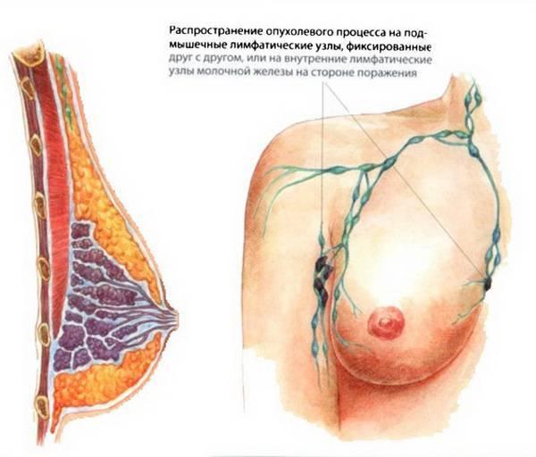 Лигнаны семени льна – защита от эстрогензависимых опухолей. гормонозависимые опухоли: что это такое и как это лечат какие опухоли являются эстроген зависимыми