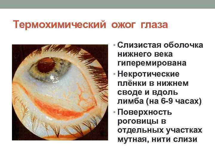 ожог слизистой глаза лечение