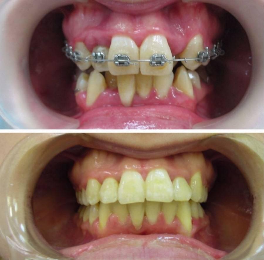 Капа после брекетов, сколько нужно носить, фото до и после лечения