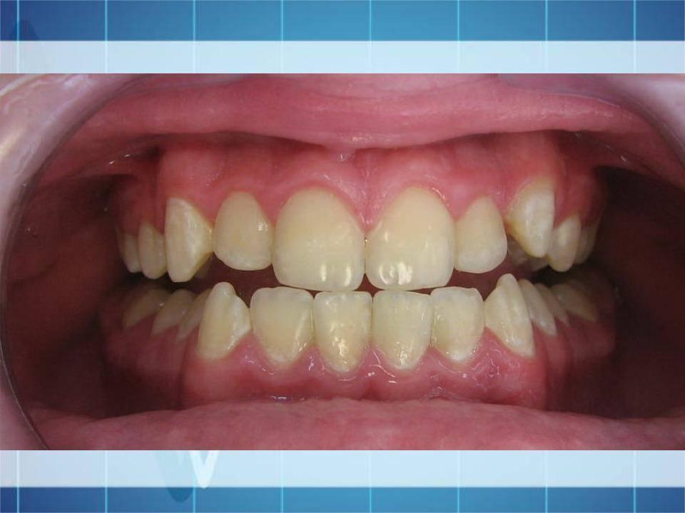 Правильный прикус у человека: фото зубов