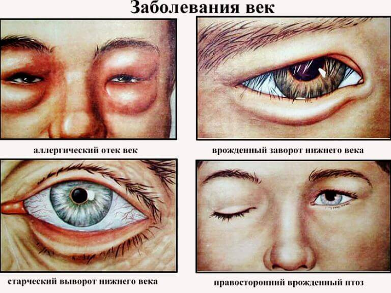 Заболевание нижнего века глаза фото — все о проблемах с глазами