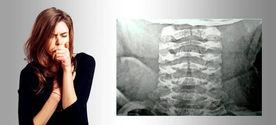 трахеит при беременности лечение