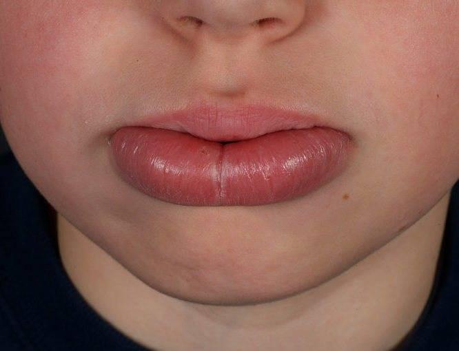 Дерматит во рту как лечить