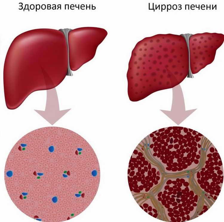 Алкогольный гепатит - первые признаки, симптомы и лечение