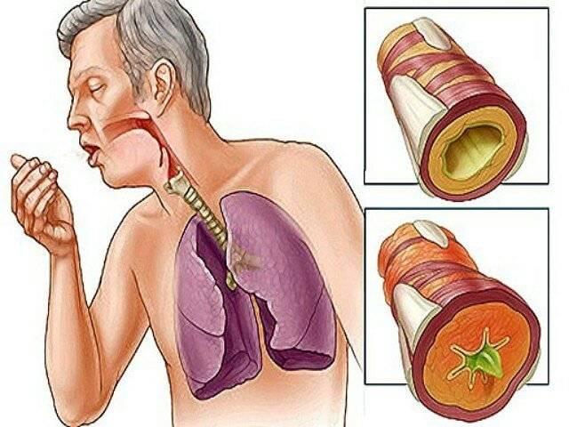 лечение трахеита в домашних условиях