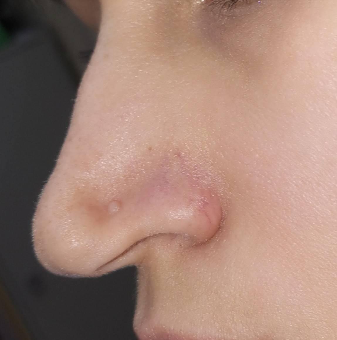 Причины, стадии развития и лечение фурункула в носу