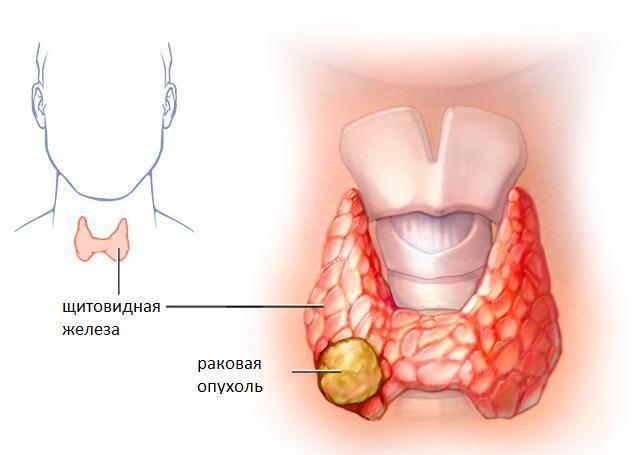 опухоль щитовидной железы лечение
