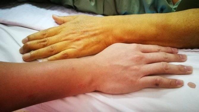 Симптомы проявления и методы лечения каротиновой желтухи у взрослых и детей. каротиновая желтуха у детей фото выздоровление малышей лечим ребенка