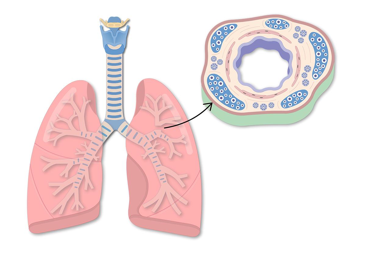 трахеит сухой кашель лечение
