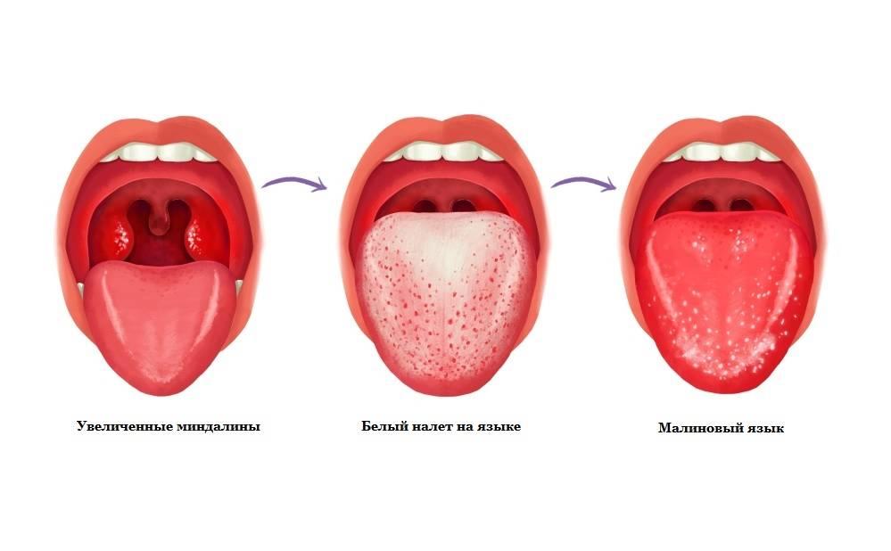 Стрептококковая ангина: причины, симптомы, лечение