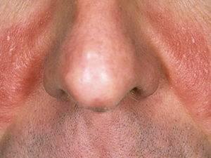 Чем лучше лечить болячки под носом