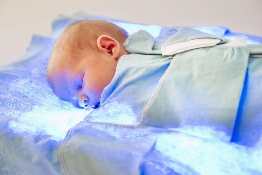 Синяя лампа при желтухе у новорожденных