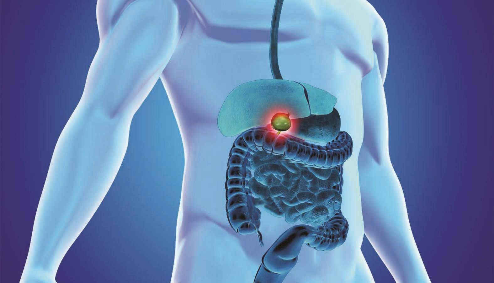 Рак желчного пузыря — первые симптомы, причины, лечение