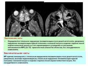 пазухи носа пневматизированы